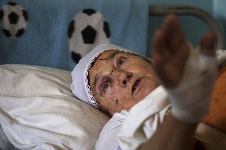Пожилая женщина, пострадавшая во время артобстрела Донецка