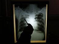Результаты рентгенографии пациента с подозрением на туберкулез