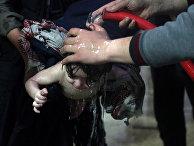 9 апреля 2018. Ребенок в больнице в Думе, Сирия, после предполагаемой химической атаки