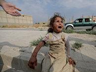 Раненая девочка в городе Таль-Абьяд, Сирия