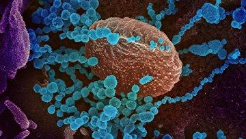 Изображение нового коронавируса, появляющегося на поверхности клеток, культивируемых в лаборатории