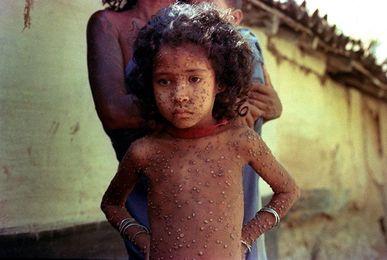 1974, Индия. Ребенок, больной натуральной оспой